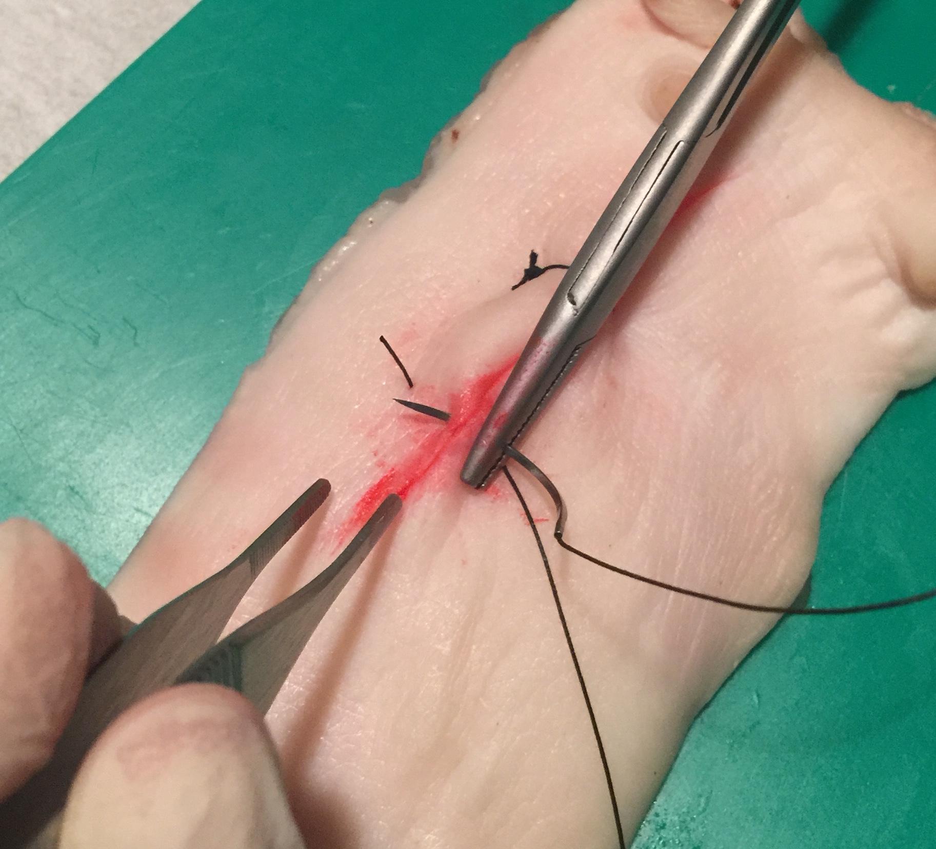 Συρραφη τραυματος